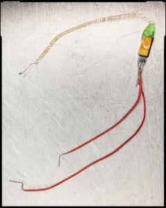 Phil Kennedy'nin beynine saplattığı elektrot düzeneği